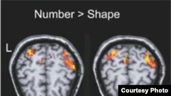 Образ мозга с выделенными активными областями, отвечающими за обработку цифровой информации. Image credit Public Library of Science. Biology biology.plosjournals.org
