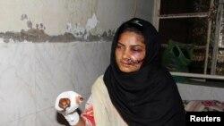 Saba Maqsood u bolnici nakon što ju je rodbina pokušala spaliti