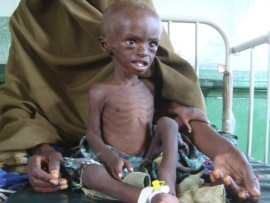 A malnourished child from southern Somalia sits in Banadir hospital in Mogadishu.