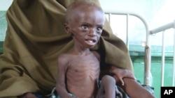 Абдикахин Омар, оказавшийся в госпитале вследствие недоедания. Сомали, 21 июля 2011 года.
