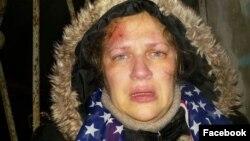Ксения Сычева после нападения