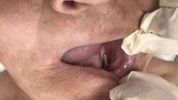 Ce măsuri se iau pentru ca serviciile dentare să fie sigure