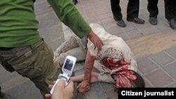 Из тегеранских больниц раненых забирали в тюрьму