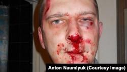 На снимке: саратовский журналист Сергей Вилков после нападения неизвестных