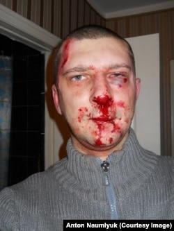 Сергей Вилков после нападения неизвестных
