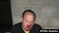 Fotografije Kerimova pošto je napadnut početkom septembra.