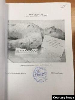 Выдержки из судебно-медицинской экспертизы трупа Дмитрия Сербинова
