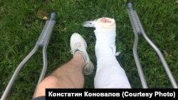 Загипсованная нога Константина Коновалова, которую ему сломали полицейские 27 июля