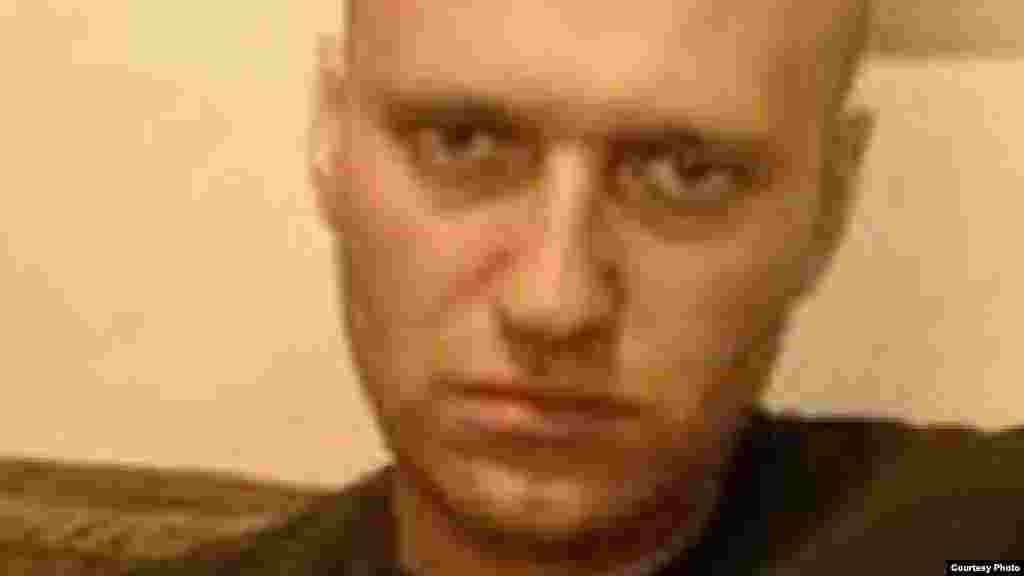 РУСИЈА - Адвокатите на затворениот опозициски политичар Алексеј Навални велат дека нивниот клиент има големи болки и стравуваат за неговиот живот, спротивно на изјавата на руските затворски власти во која се вели дека критичарот на Кремљ е во задоволителна состојба.