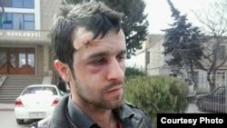 Участник акции протеста в Баку, оппозиционный активист Ренат Наджафов был избит, по его словам, полицейскими после задержания. 11 марта 2013 года.