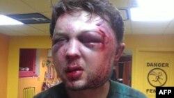 B Киеве жестоко избит идеолог FEMEN Виктор Святский