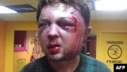 В Киеве жестоко избит консультант FEMEN Виктор Святский