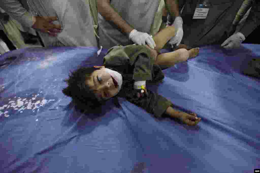 A child receives medical treatment at a hospital in Peshawar.