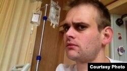 Люк Олнат падчас хіміятэрапіі