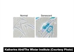 Фото: Katherine Aird/The Wistar Institute