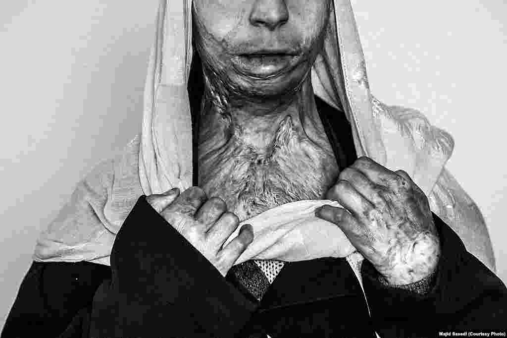 """Majid Saeedi of Iran won second prize in the Contemporary Issues Stories category with his series """"Life In War."""" This picture shows Zahra, 20, from the Afghan city of Herat, who set fire to herself four years ago. Conservative Islamic laws and tribal traditions frequently dictate what women are allowed to do. Forced marriages, domestic violence, poverty, and lack of access to education are among the main reasons self-immolations take place."""