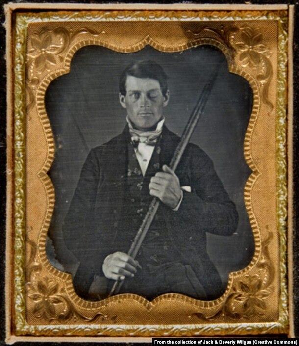 Финеас Гейдж с тем самым ломом. Дагерротип 1849 года