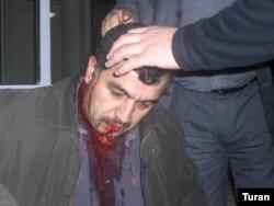 Üzeyir Cəfərova hücumdan sonra (Foto Turan 2007)