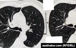 Рентгеновский снимок легких пациента с COVID-19