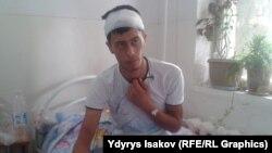 Ошто жол күзөт кызматкеринен таяк жеген айдоочу Мансур Тураджанов ооруканада дарыланууда.