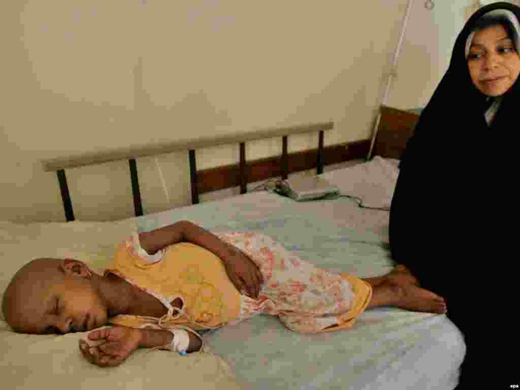 8. Trećina karcinoma bi mogla biti izliječena ukoliko bi se otkrili u ranoj fazi i liječili sa adekvatnim tretmanom - Foto: Djevojčica oboljela od leukemije, Baghdad, EPA - Faleh Kheiber