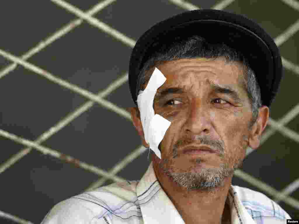 Жаралы өзбек босқыны. Ош, 20 маусым 2010 жыл.