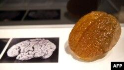 Einstein-in beyninin şəkli və modeli