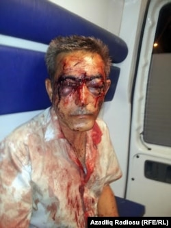 Journalist İlgar Nasibov was brutally beaten in August.