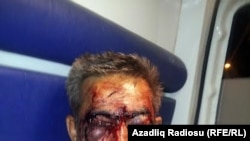 Azerbaijan - Beaten Azerbaijani journalist İlgar Nasibov - 22Aug2014