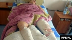 One of the injured in the Minsk explosion