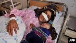 Afghan woman Reza Gul, 20, whose nose was sliced off by her husband in an attack, lies on a bed with her baby as she receives treatment at a hospital in the northern province of Faryab on January 19.