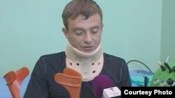 Николай Синявин в больнице после избиения. Сентябрь 2014 года.