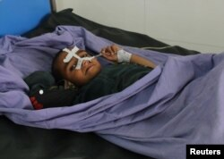 An Afghan child receives treatment at a hospital after an April 2 air strike in Kunduz Province.