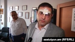 Подвергшиеся насилию адвокаты Тигран Атанесян (слева) и Армен Согомонян, 27 апреля 2017 г․