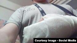 """Сломанные пальцы сотрудника """"Вконтакте"""": нападавшие целенаправленно били его по руке"""