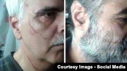اثر ضرب و جرح بر چهره سعید مدنی (چپ) و سعید رضوی فقیه
