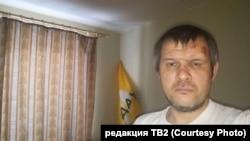 Сергей Иванов после нападения на него неизвестного в декабре 2019