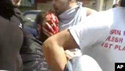 یکی از معترضان در جریان حمله نیروهای سوریه به مردم در حمص در روز دوشنبه