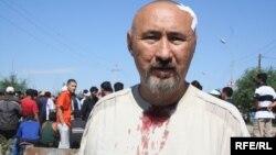 Арон Атабек, раненный во время беспорядков в Шаныраке. Алматинская область, 14 июля 2006 года.