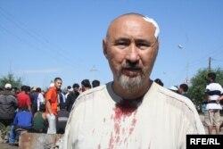 Шаңырақ оқиғасы кезінде жараланған Арон Атабек. Алматы, Шаңырақ, 14 шілде 2006 жыл.