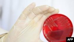 E.coli вывучаецца ў лябараторыі.