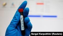 MOK formirao i radnu grupu da u celini ispita skandal oko dopinga ruskih sportista