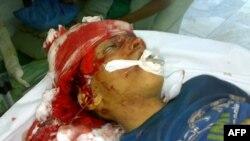 Тяжело раненый участник акций протеста в Йемене