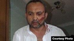 Бахром Хамраев и ранее подвергался нападениям со стороны неизвестных лиц и сотрудников российских спецслужб.