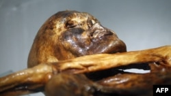 Italy -- The mummy of an iceman named Otzi