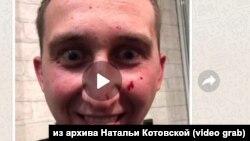 Подозреваемый в избиении до смерти житель Красноярска