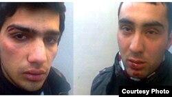 Пострадавшие Джаббар Савалан (слева) и Даянет Бабаев, 6 марта 2012 года
