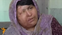 Charity Brings Glimmer Of Hope To Afghan Acid Attack Victim