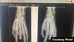 Гуля Белек кызынын жабыркаган колунун рентгенге түшүрүлгөн сүрөтү.