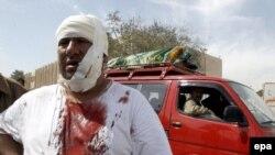 در انفجارهای انتحاری روز سه شنبه دست کم ۱۱۸ نفر کشته و ۱۶۰ نفر مجروح شده اند.